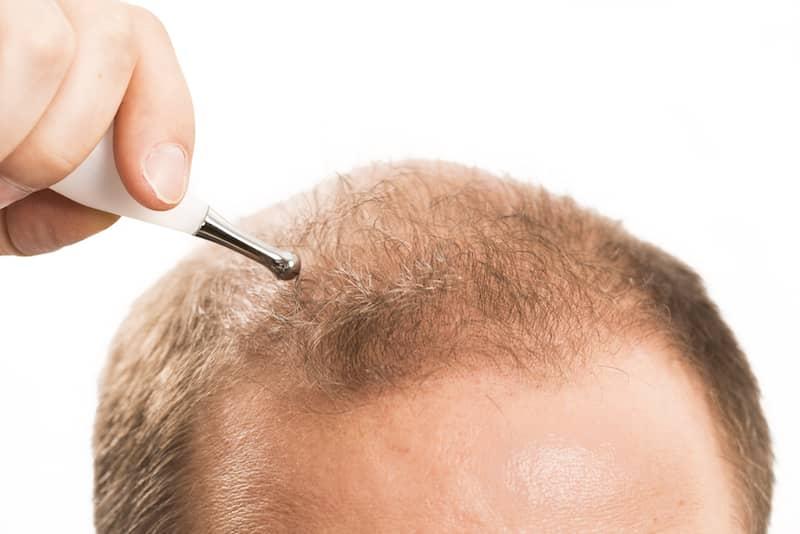 Saç Dolgunlaştırıcı